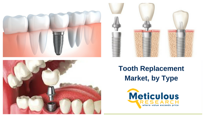 ooth Replacement Market