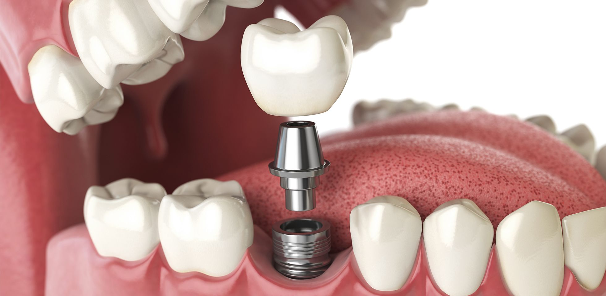 dental implants worcester ma